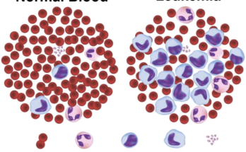BLOOD CANCER DETECTION AI PROJECT